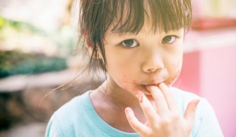 Παγκόσμια έκθεση για την επισιτιστική κρίση